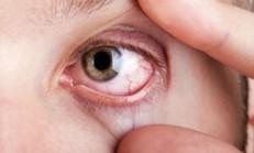 Göz kanlanması ve Nedenleri