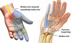 Karpal tünel sendromu belirtileri teşhisi ve yeni tedavi yolları