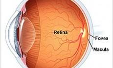 Sarı nokta hastalığı nedir ve nasıl tedavi edilir?