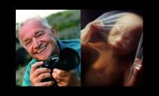 Bir Bebeğin Anne Karnındaki Mucize Görüntüleri