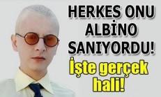 Pis Yedili Dizisinde PC Rolündeki Ahmet Yıldırım Gerçekten Albino Hastası Mı?